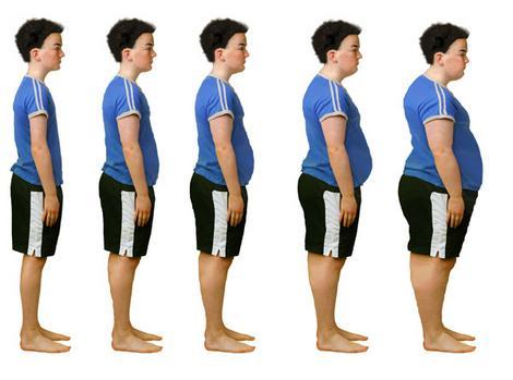 Az elhízás típusai és okai