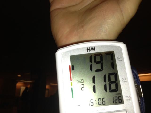 magas vérnyomás és hipotenzió mi ez a halolaj magas vérnyomásának előnyei