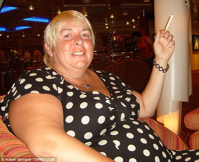 Az 51 éves Julie Dunbar a gyomorszűkítés mellett döntött, miután 133 kg volt már a súlya.