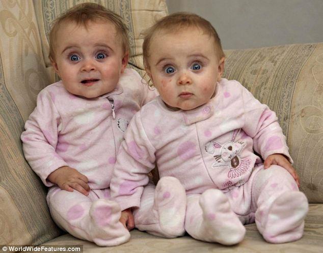 Most már 4 évesek: a Roden család ikrelányai, Emily és Ruby még bébiként.