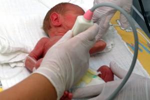 Egészségügy - Ajándék ultrahang készülék Miskolcon