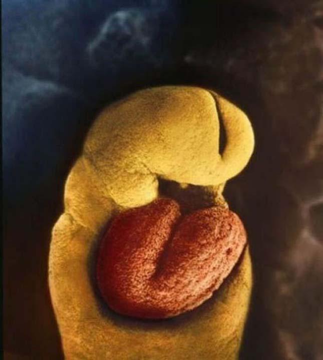 embriószív