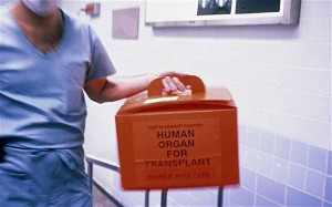 organ-transplan