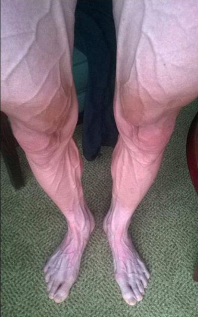 This picture of Tour de France competitor Bartosz Huzarski's legs is incredible