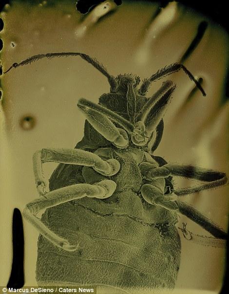 Férgek mikroszkóp alatt széklettel, A paraziták modern kezelése