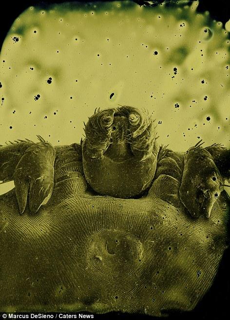 paraziták a mikroszkóp alatt