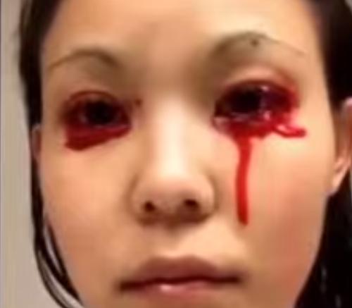 Linnie-Ikeda-krvacanie-z-oci