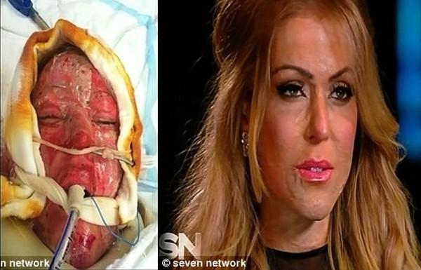 arcműtétek1