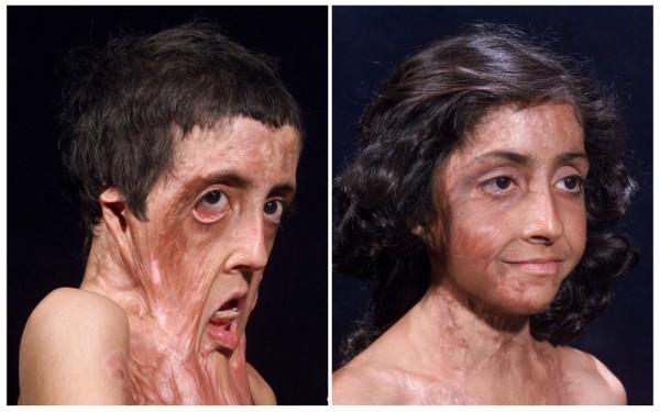 arcműtétek10
