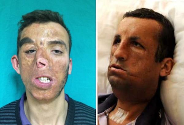 arcműtétek11