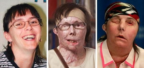 arcműtétek12