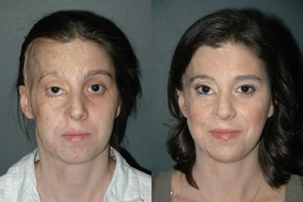 arcműtétek3
