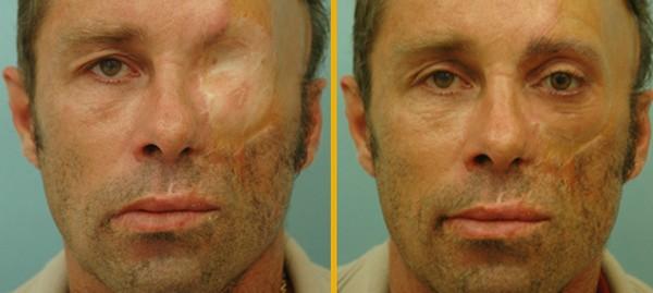 arcműtétek4