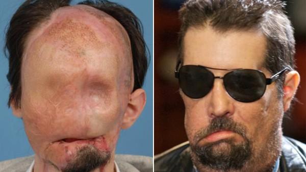 arcműtétek5