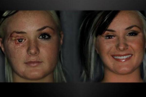 arcműtétek6