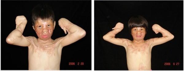 arcműtétek7