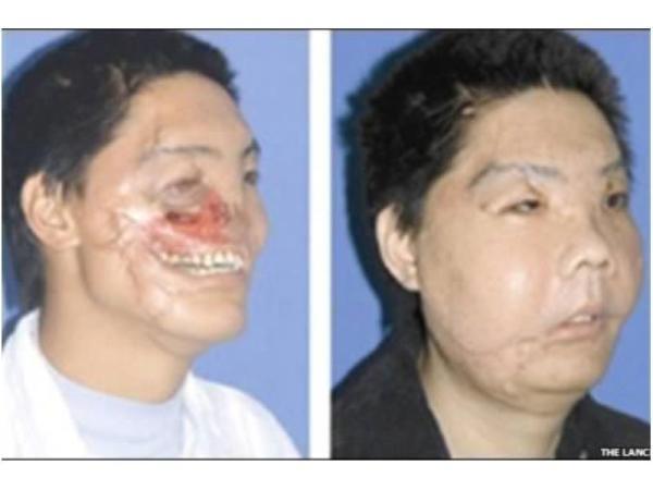 arcműtétek8