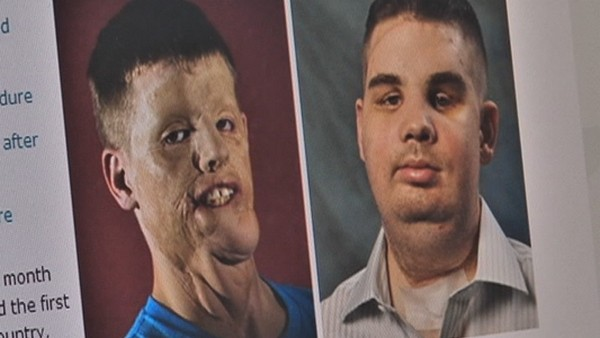 arcműtétek9