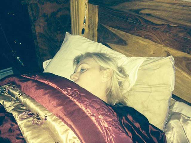 BOTCHED EYE LID SURGERY DAWN KNIGHT DAWN SLEEPING.jpg