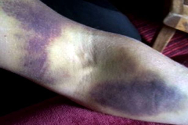 PAY-Thea-Wilson-bruises-Leukaemia