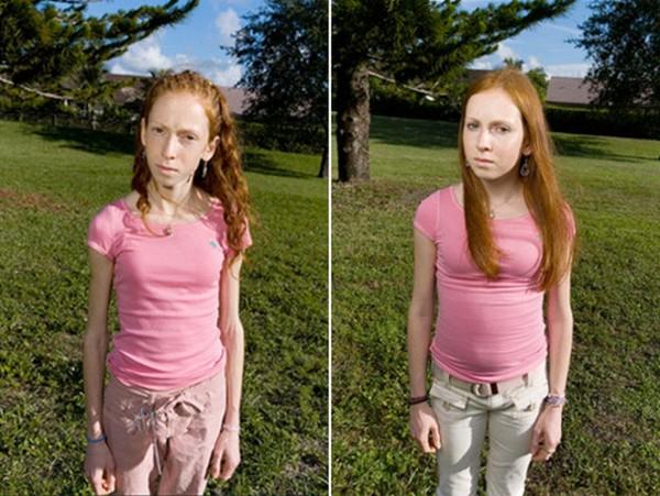 lánybetegség7