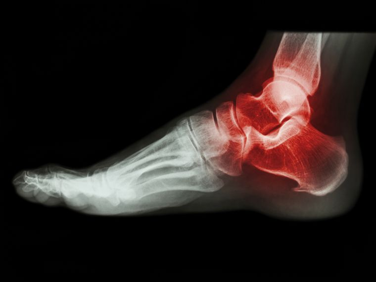 X-ray human's ankle with arthritis