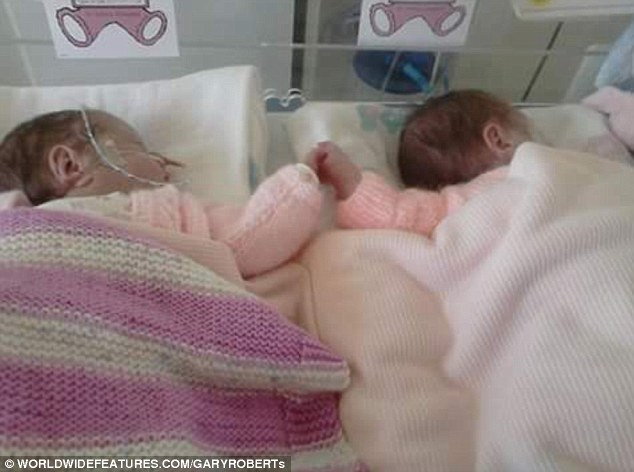 2954098C00000578-3167584-Never_let_me_go_Premature_twins_Grace_left_and_Lily_Johnstone_wh-a-19_1437394875793