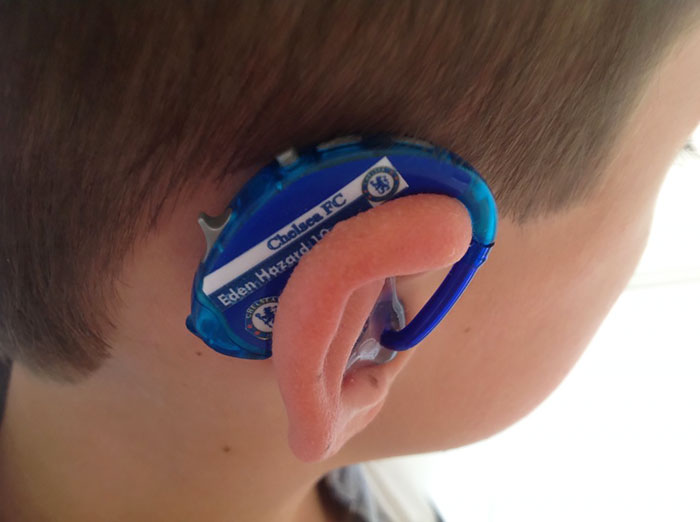 hearing-aid-decorations-kids-cochlear-implant-sarah-ivermee-lugs-1