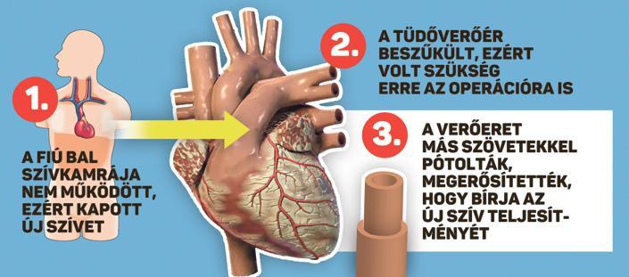 3_o_szivtranszplant_graf