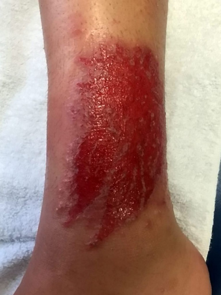 PAY--16-year-old-prom-queen-left-with-chemical-burns-after-getting-holiday-henna-tattoo (1)