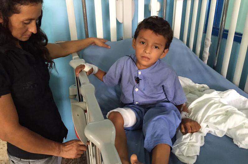 piernas-tratadas-medicos-Hospital-Guapiles_LNCIMA20150808_0094_5