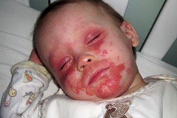 PAY-eczema