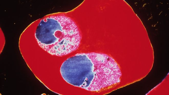 _86227751_m2100022-tem_of_2_merozites_of_the_malaria_parasite-spl