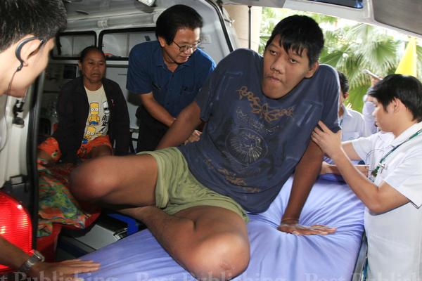 พรชัย เสาศรี ชาวจ.สุรินทร์ ผู้ซึ่งมีอาการผิดปรกติทางร่างกาย ความสูงยังคงเพิ่มขึ้นแม้จะอายุ 23 ปี แล้ว เดินทางเข้ารับการรักษาที่โรงพยาบาลพระราม 9 เมื่อ 19 พศจิกายน 2556 ปัจจุบันสูง 257 c.m. ซึ่งมากกว่าชาวตุรกีที่สูงที่สุดตามสถิติกิเนสบุ๊ค 251 c.m.