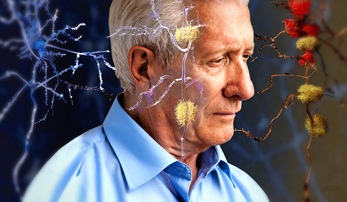 Alzheimer-Negative-Outlook