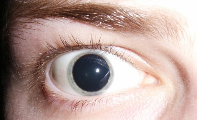 LSD-Depression-e1425609389995