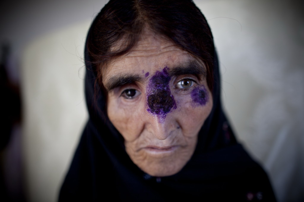 KABUL, AFGHANISTAN - MAY 15: An Afghan recieves treatment for a tropical skin disease at a clinic on May 15, 2010 south of Kabul, Afghanistan. The Afghan capital, Kabul, has one of the highest concentrations of the disfiguring skin disease, Cutaneous leishmaniasis, which is a parasitic disease transmitted by the phlebotomine sand fly. The World Health Organization estimated the number of cases in Kabul jumped from 17,000 in early 2000 to around 65,000 in 2009; the disease is non-lifethreatening and treatable with medication. (Photo by Majid Saeedi/Getty Images)