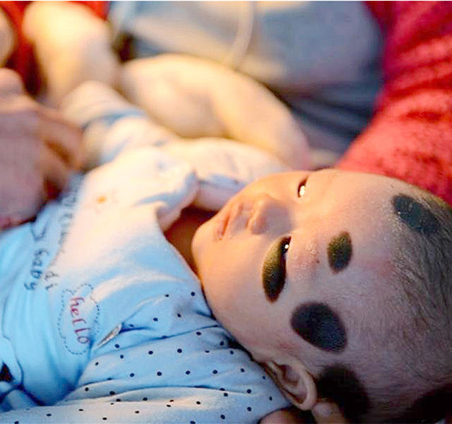 Pic shows: Wu Zimiao's condition and her parents. The parents of a girl born with a rare skin condition that left her with panda-like black patches are trying to raise money for much needed laser treatment. She now has large moles over much of her skin which are sure to cause her problems with acceptance in society in the future if not treated. Wu Zimiao, the two-month-old infant, was born with congenital melanocytic nevus – a type of mole and birthmark that affects about 1 percent of infants worldwide. Zimiao's father, Wu Xianpo, said he had never seen anything like it in his life, but was relieved when doctors told him the condition is easier to treat the younger the patient is. The dark patches are mainly focused on Zimiao's left shoulder and right arm, but also appear on her head and back. The parents from Xinyi Township, in north China's Hebei Province, are now desperately trying to raise the estimated 300,000 to 500,000 RMB (31,500 to 52,600 GBP) needed by the hospital for laser treatment. Xianpo admitted that such money will be hard to find for a migrant worker like himself, with his wife largely involved in farm work, but he vowed to do everything possible to give his little girl a normal future. Large congenital nevi, like the one suffered by Zimiao, are caused by mutations in the body's cells during early embryonic development, with no known method of prevention. While the moles do not cause any physical pain, they are often removed to prevent cancer, and also to help relieve any psychosocial issues the patient might suffer in the future as a result of the condition. (ends)