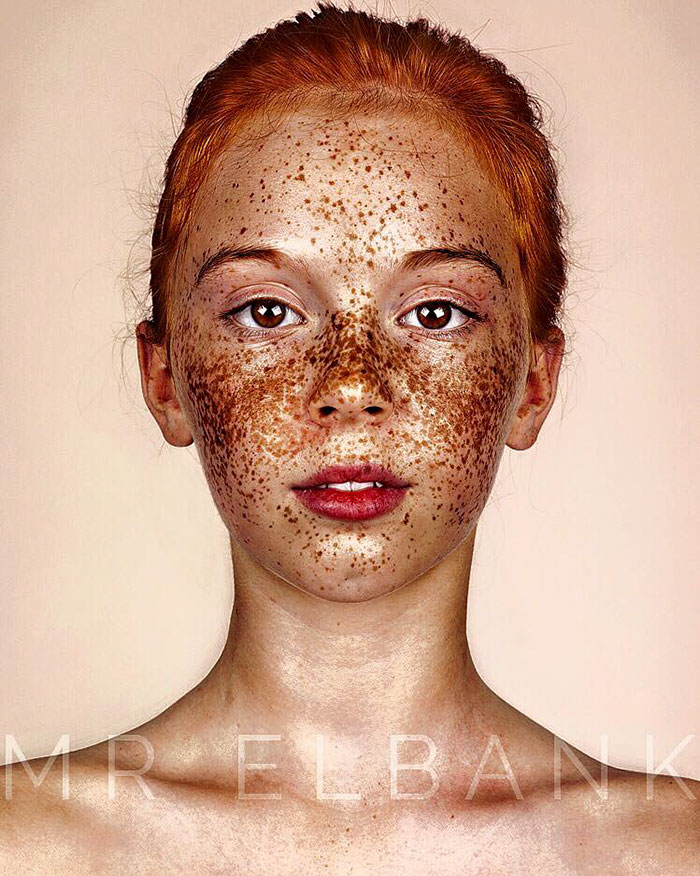 freckles-portrait-photography-brock-elbank-105__700