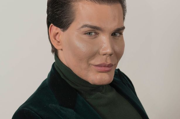 PROD-Rodrigo-Alves-305K-of-cosmetic-surgery