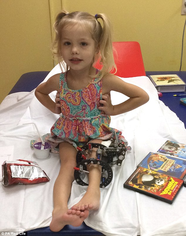 339EAD5900000578-3563606-Brave_Elsie_pictured_had_her_leg_broken_300_times_in_four_months-a-17_1461854358031