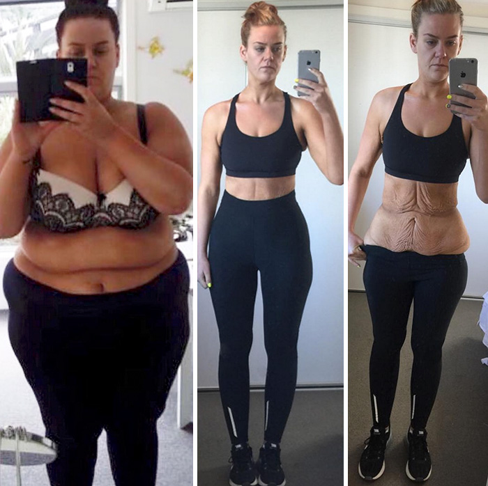 weight-loss-success-stories-34-5743045b3d815__700