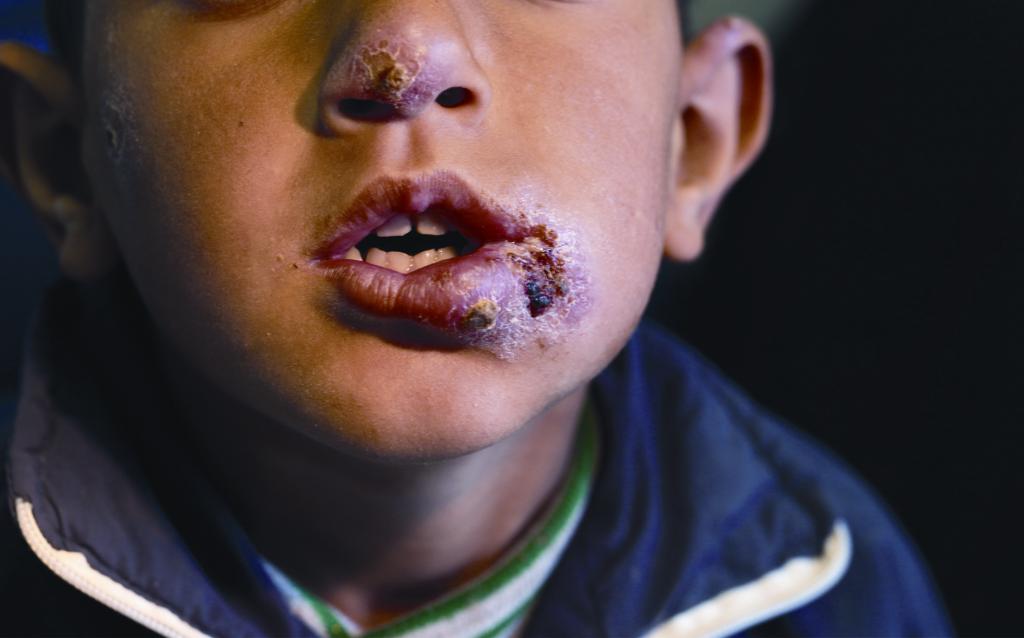 Kórban szenvedő szíriai gyerek