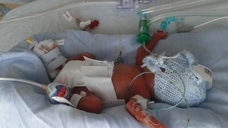 35 naposan meghalt koraszülött baba képeivel akart egy csaló pénzt gyűjteni c044bf775f