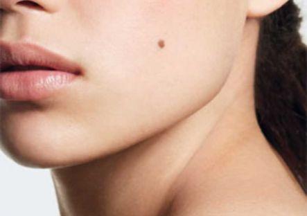 birthmark2