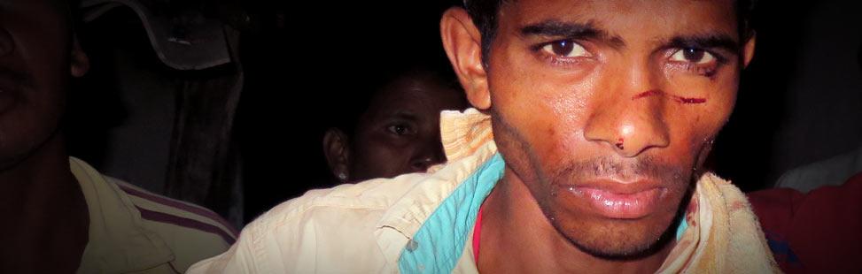 Egy indiai keresztény üldözött férfi