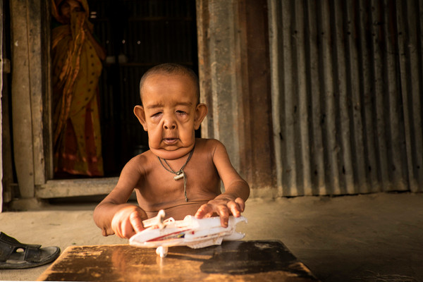 4 year-old boy who looks liek an 80 year-old, from Bangladesh
