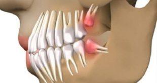 uj-korszak-fogaszatban-nincs-szukseg-implantatumra-fogak-63-nap-alatt-kinonek-500x267