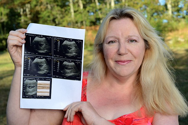 © JK PRESS PIC JOHN ALEVROYIANNIS, EXCLUSIVE PICTURE CAROLE HORLOCK PICTURED AT HER HOUSE IN FRANCE WITH THE SCAN . SHE IS PREGNANT WITH HER 13TH SURROGATE BABY