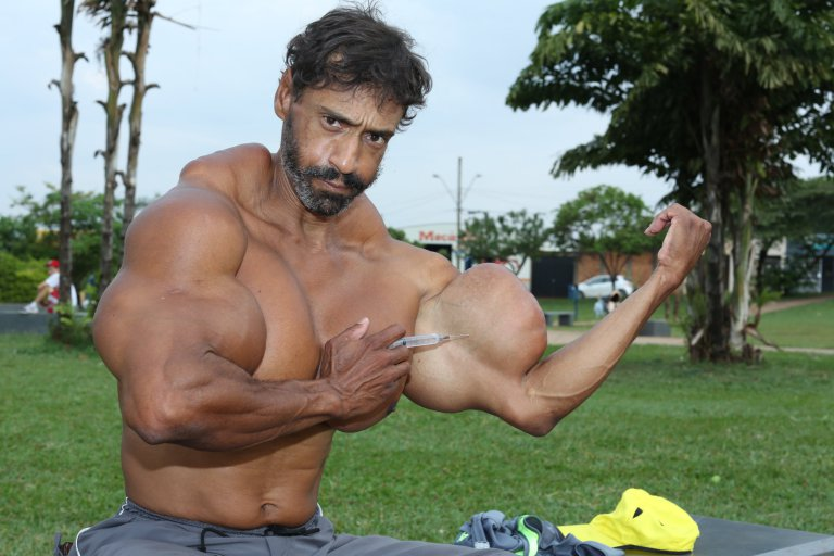 *** EXCLUSIVE - VIDEO AVAILABLE *** SAO PAULO, BRAZIL - OCTOBER 01: Valdir injects synthol into his bicep on October 1, 2015, in Sao Paulo, Brazil. An incredible Hulk-inspired bodybuilder is risking his life to pump up his muscles by injecting oil into his arms. Beefcake Valdir Segatoís huge biceps measure a staggering 23 inches as a result of painful synthol injections.The 48-year-oldís arms have doubled in size from 12in after he began injecting the potentially lethal oil substance five years ago - and now he wants to get even bigger. Valdir, from Sao Paulo, Brazil, is inspired by the physiques of Arnold Schwarzenegger and the Hulk and is proud to be known locally as ëHe-Maní and 'the monsterí in the street. PHOTOGRAPH BY Guilherme LaMotta / Barcroft Images London-T:+44 207 033 1031 E:hello@barcroftmedia.com - New York-T:+1 212 796 2458 E:hello@barcroftusa.com - New Delhi-T:+91 11 4053 2429 E:hello@barcroftindia.com www.barcroftimages.com